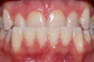 Invisalign & Whitening - before smile