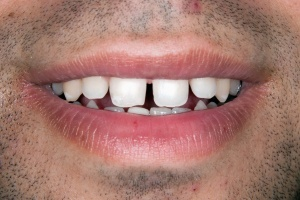 Invisalign - before smile