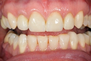 Whitening - after smile