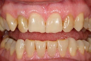 Whitening - before smile