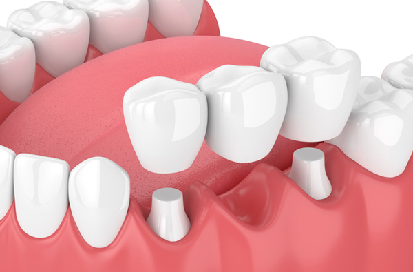 image of dental bridge GettyImages 941012812