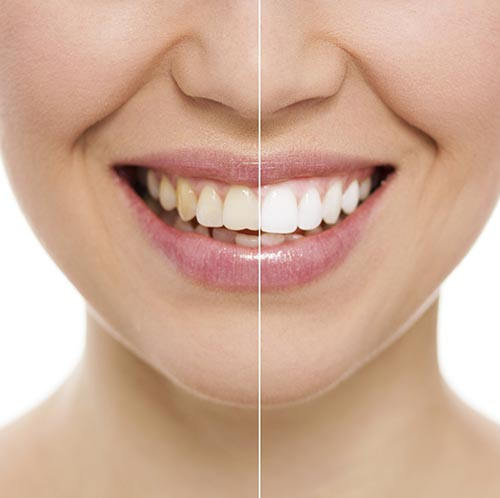 Common Reasons Behind Teeth Discoloration